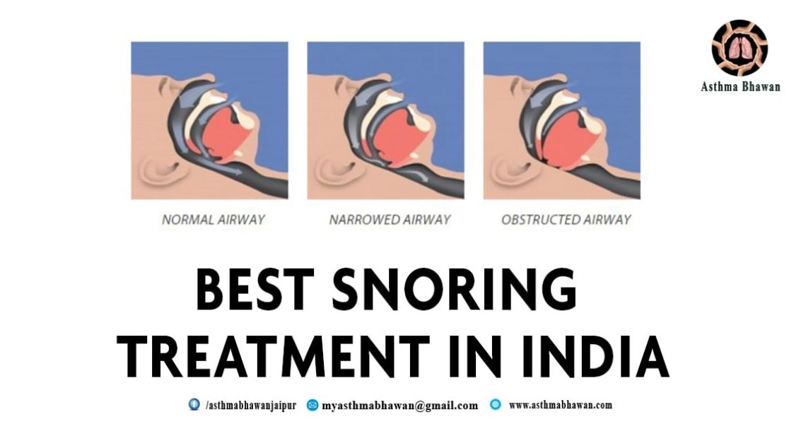 best Snoring Treatment In India
