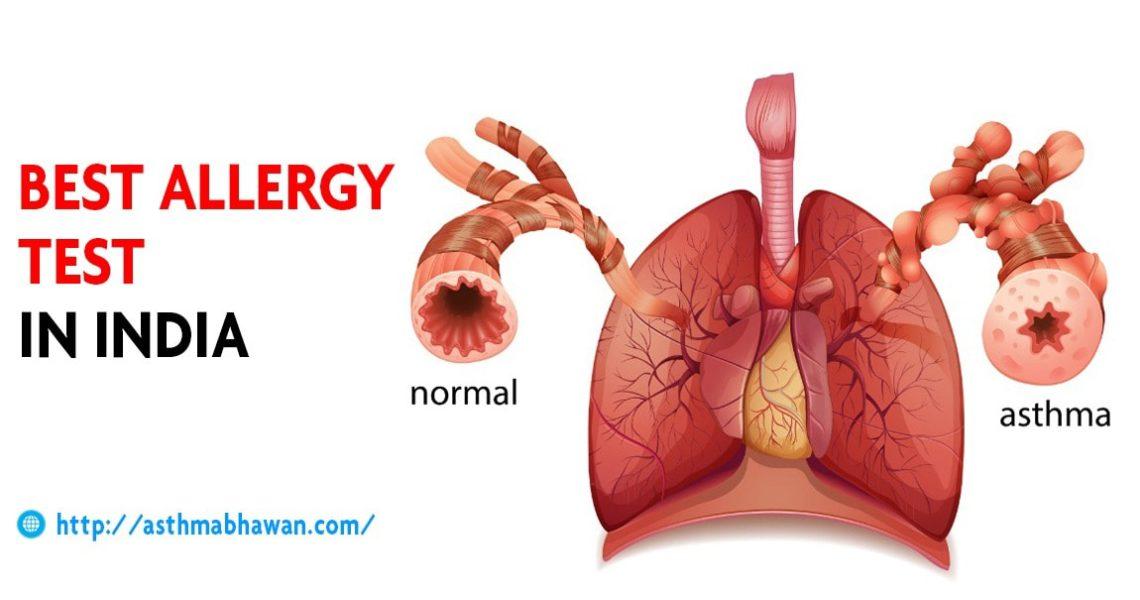 Best Allergy Test In India