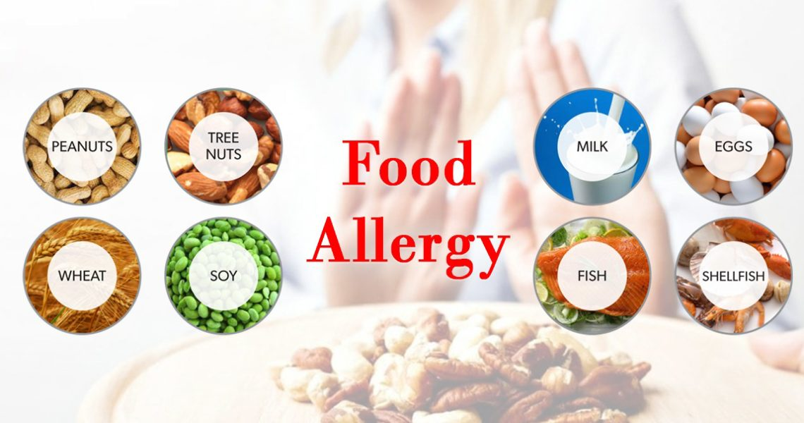 What is Food Allergy